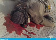 تصاویر دیده نشده و نایاب جنگ ایران و عراق